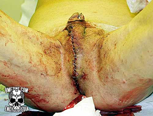 File:Scrotal Removal-6.jpg