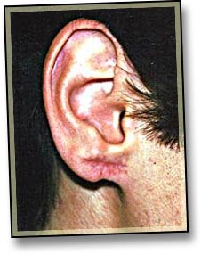 Earlobe Reconstruction-1.jpg