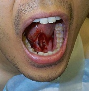 TongueFrenectomy.jpg